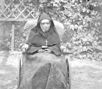 Zuster Longina verbrand in het aangezicht, 1915.